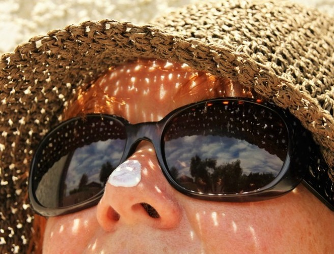 More Irish people die from skin cancer than Spanish or Italian people