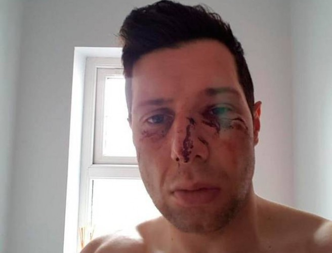 Moy appeal decision not to impose sanctions following Sean Cavanagh incident